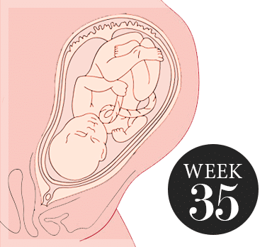 35 weken zwanger
