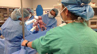 bijzondere geboorte tweeling