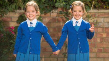 gescheiden siamese tweeling